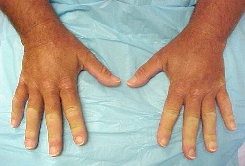 боль в плечевом суставе симптомы и лечение