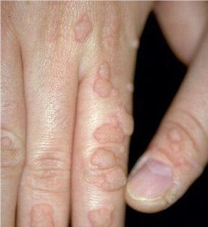 Все о бородавках, вирусе папилломы и кондиломах - здоровье кожи ...