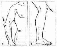 Бурсит причины симптомы и лечение воспаления суставной сумки
