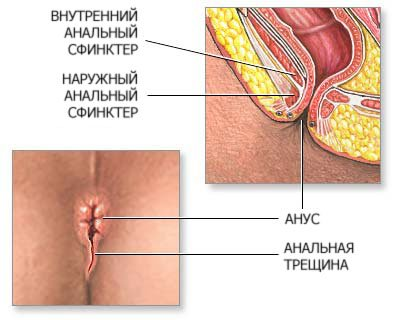 Как избавиться от ананальной трещины и болей в анусе