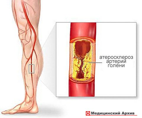 нарушения кровообращения в области суставов