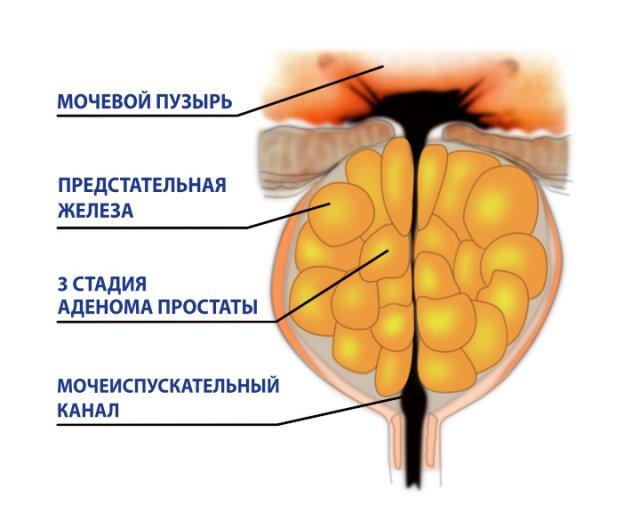 Признаки, фитотерапия и схема