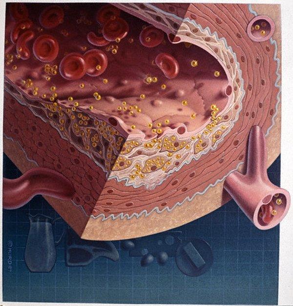 витамины от холестерина крови