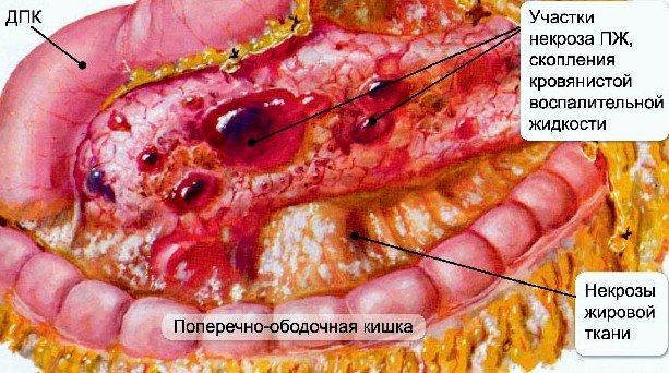 Лазерное лечение аденоидов в москве для детей