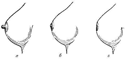 Плоский или втянутый сосок
