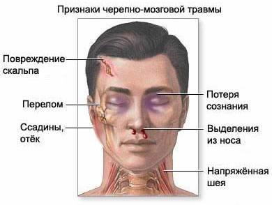 Большое расстояние между глазами это болезнь