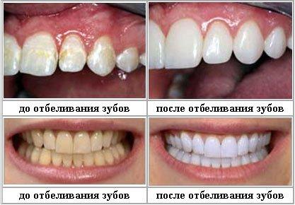 ставят ли виниры на мертвые зубы