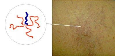 Cосудистые звездочки на теле при циррозе печени: фото, причины, лечение и профилактика