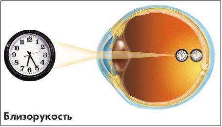 Лазерная коррекция зрения в курске добрый взгляд