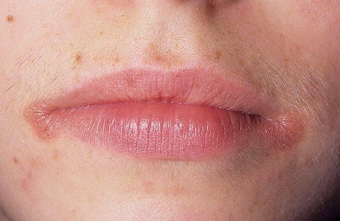 морщинки в уголках губ форум