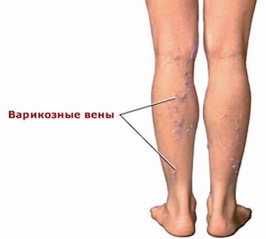 Что такое тромбофлебит и как он лечиться