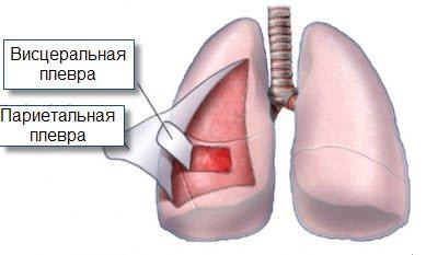 Болит горло отек гортани