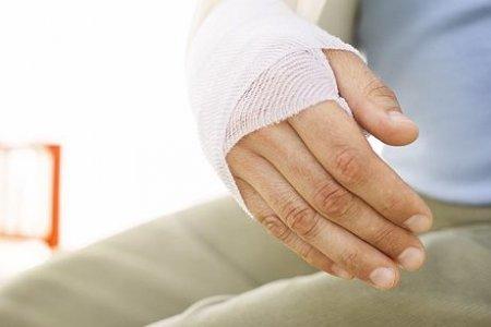 Оказание первой медицинской помощи при открытом переломе