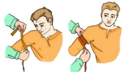 Первая помощь при переломах конечностей: что делать, доврачебна помощь