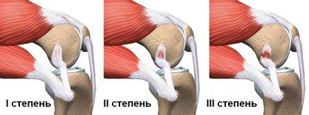 Первая помощь при растяжении связок и мышц