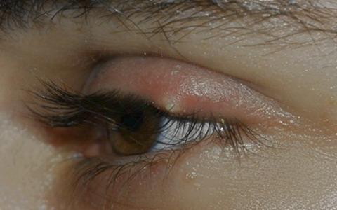 Картинки по запросу ячмень на глазу у женщины