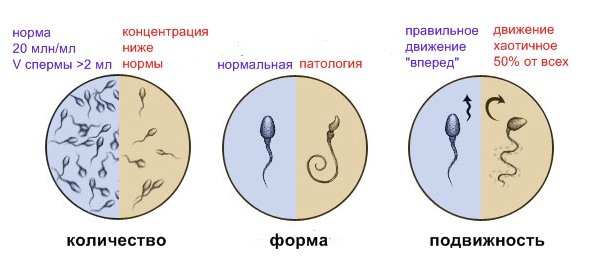 Что делать если нет подвижных сперматозоидов