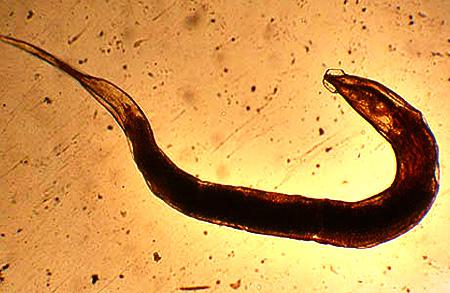 черви у человека в животе фото