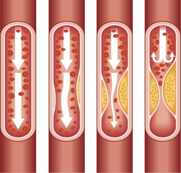 чистка сосудов от холестерина