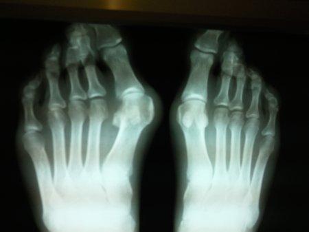 Рецепты лечения косточек на ногах