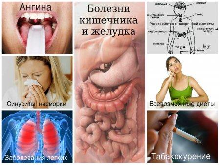 Возможные причины неприятного запаха изо рта