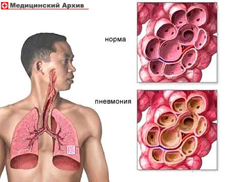 Народные средства против пневмонии