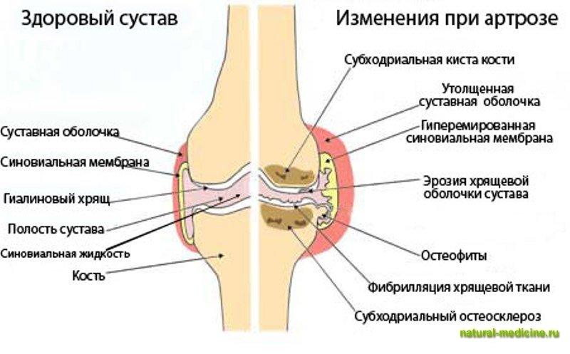 Народные рецепты лечения суставов позвоночника жгучие мази от боли в суставах