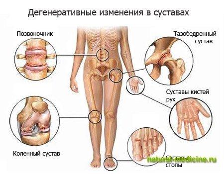 Лечение суставов целой картошкой волгоградский центр по лечению позвоночника и суставов отзывы