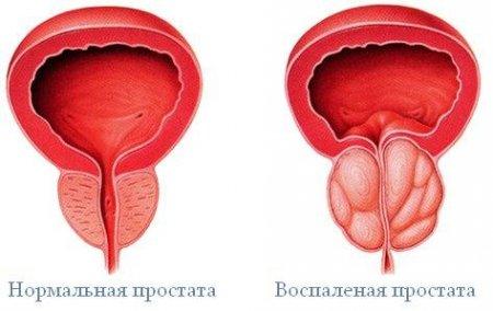 Народные средства лечения простатита и аденомы простаты