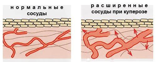 проблемы с сосудами повышен холестерин