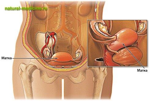 лет мне фемостон при эндометриозе матки есть мч