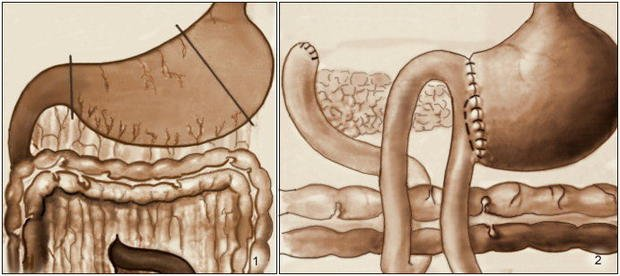 Причины боли в правом боку и спины