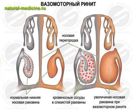 Препарат для лечения воспаления по женски