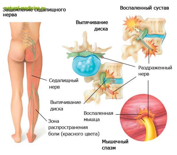 Как самому вылечить пневмонию