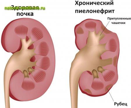 Боли в груди при ходьбе проходят при остановке