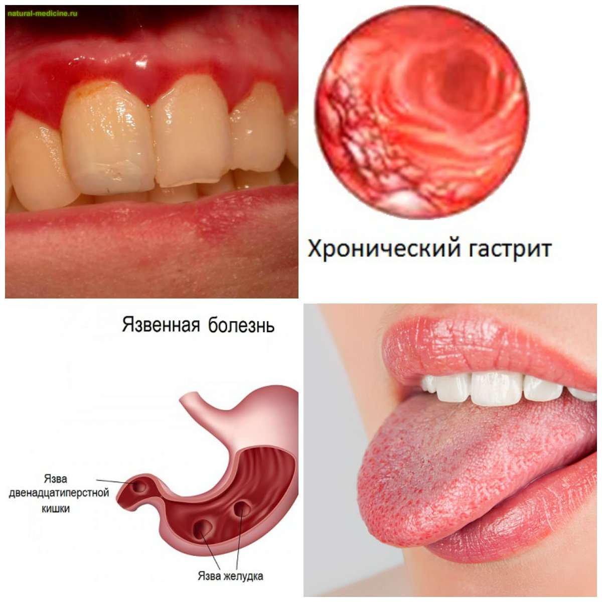 запах изо рта не от зубов причины