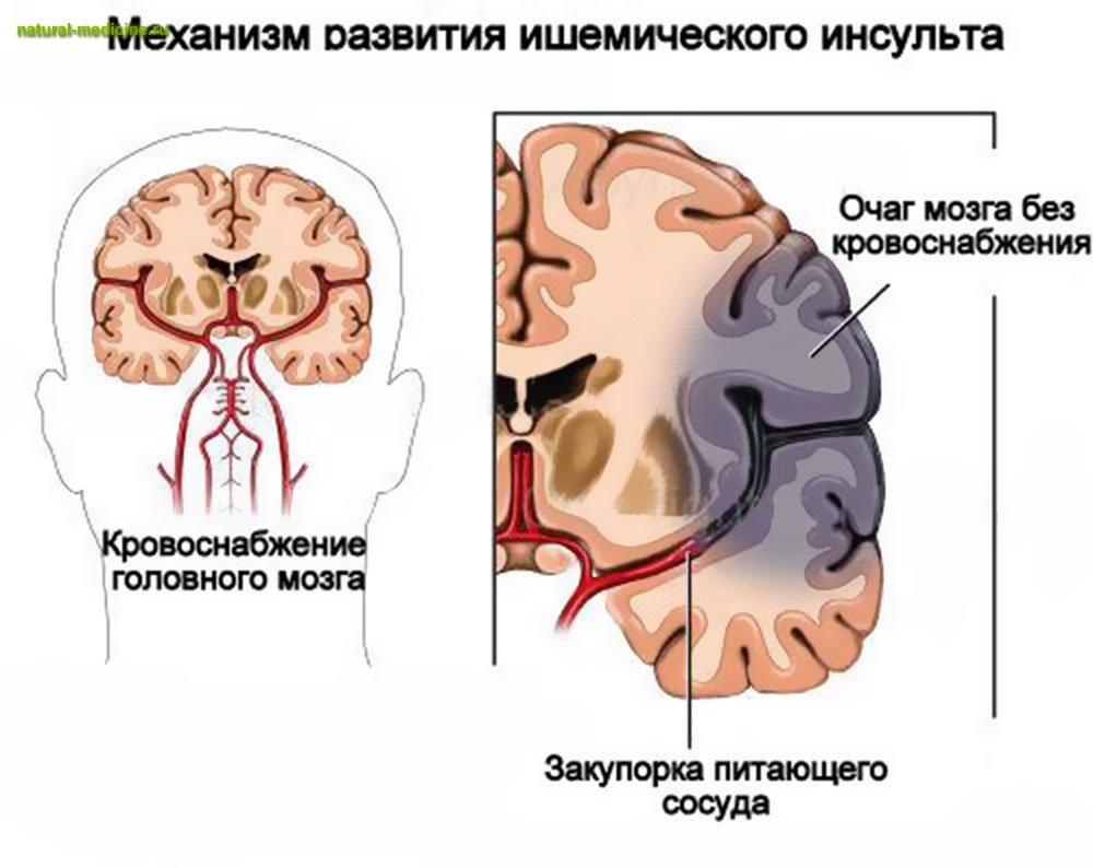 Качестве профилактики ишемической болезни сердца атеросклероза необходимо регулярно употреблять неб