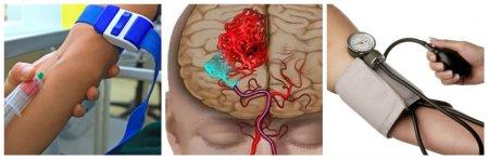 Лечение и диагностика инсульта