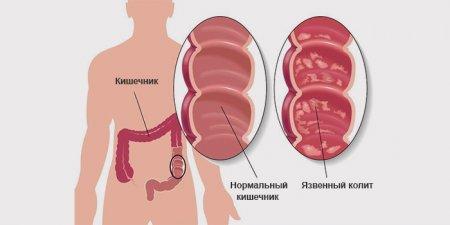 Колит и дисбактериоз кишечника
