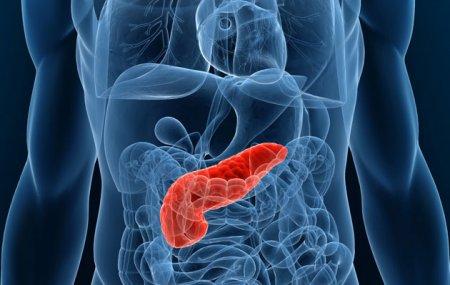 функций поджелудочной железы или субфебрилитет.