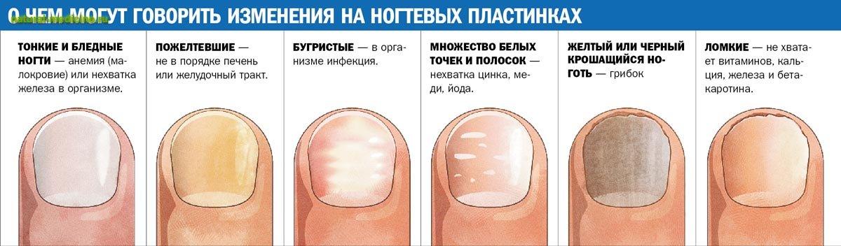 Как выглядит грибок на ногте ноги
