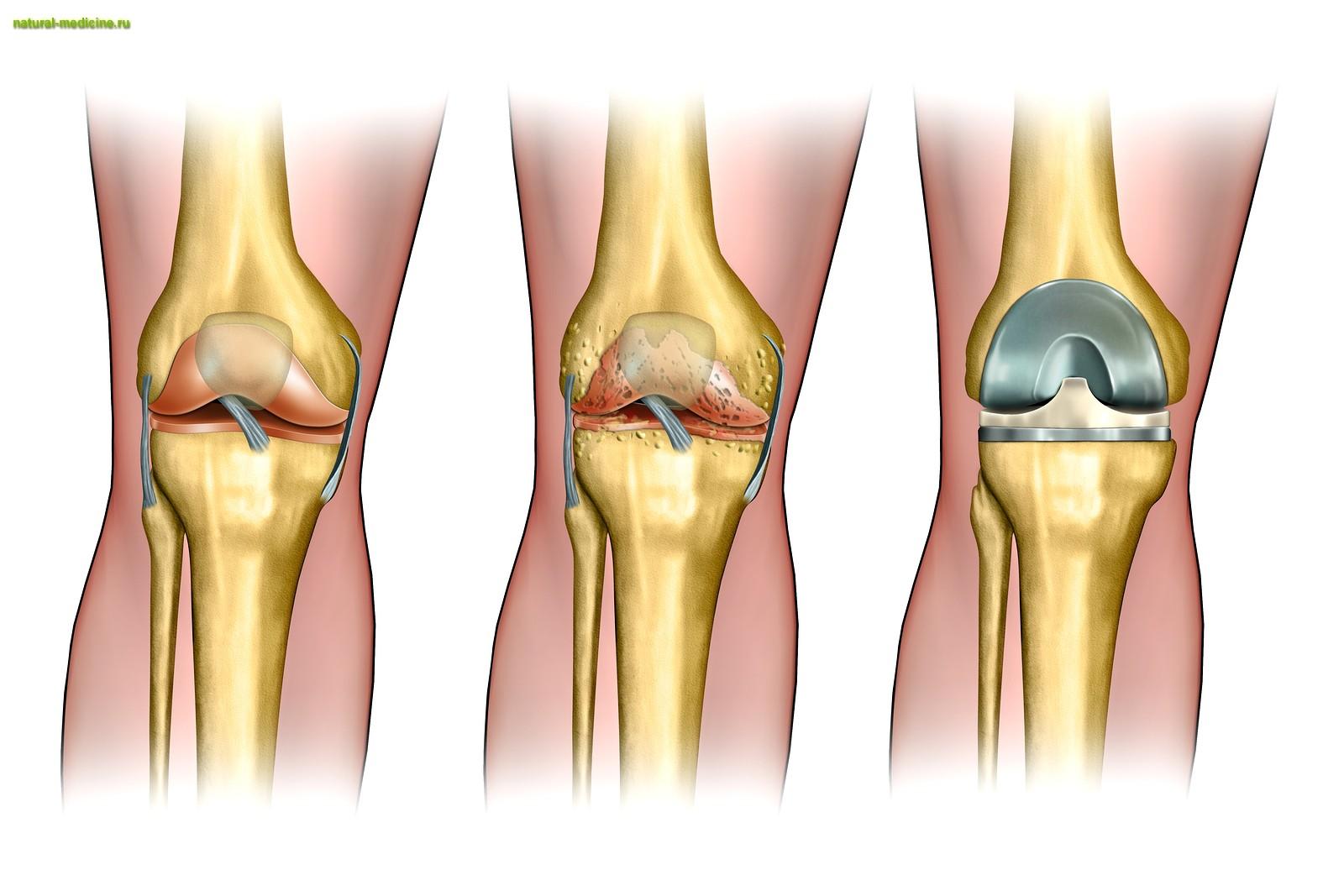 Инвалидность при эндопротез коленного сустава ломота в костях и суставах при гриппе