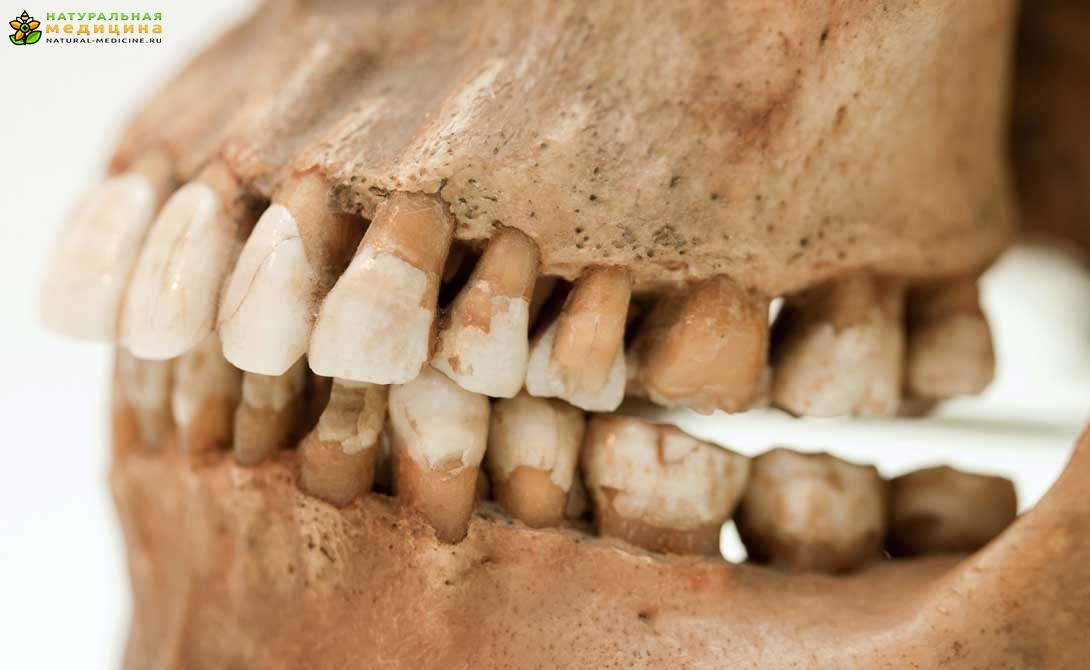 отбеливание зубов архангельск цены